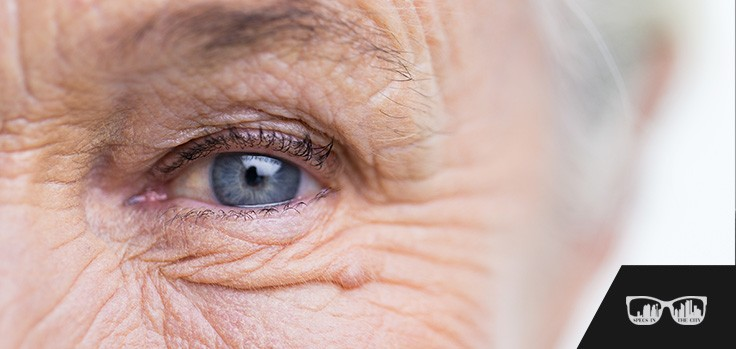 cataract management calgary, optometrist se calgary, optometrist calgary, calgary optometrist, eye clinic calgary, eye exam calgary, calgary eye exam, eye emergencies calgary, contact lenses calgary, dry eye syndrome calgary, Specs in the City Optometry