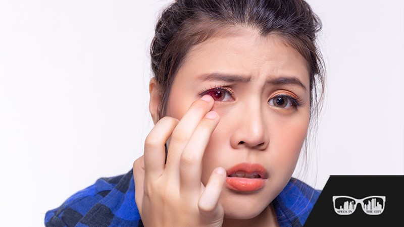 eye emergencies, adult eye exams calgary, senior eye exams calgary, calgary, optometrist se calgary, optometrist calgary, calgary optometrist, eye clinic calgary, eye exam calgary, calgary eye exam, eye emergencies calgary, contact lenses calgary, dry eye syndrome calgary, Specs in the City Optometry